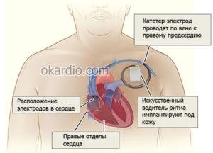 Какая инвалидность положена после открытой операции на сердце